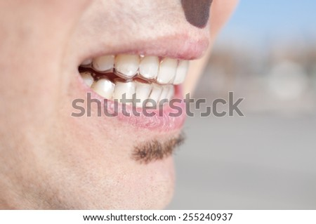 closeup of the mouth of a young man who is wearing clear retainers