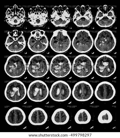 Computed tomography (CT or Cat) scan of the brain, Small vessels disease or cerebral infarction, brain atrophy