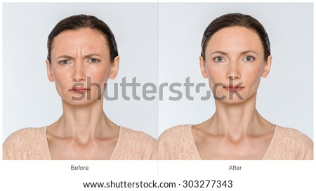Concept of botox procedure. Middle age Woman with and without aging singes - worry wrinkles, nasolabial folds before and after cosmetic or plastic procedure, anti-age therapy, lips volume