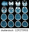 CT scan of brain - stock photo