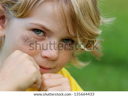 Cute Little boy with a black eye, fighting back