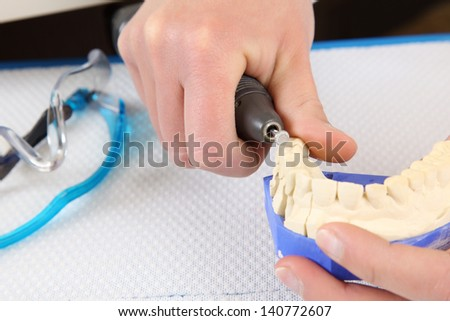 Dental surgeon molding prosthetic teeth with the aid of a dental drill and burr