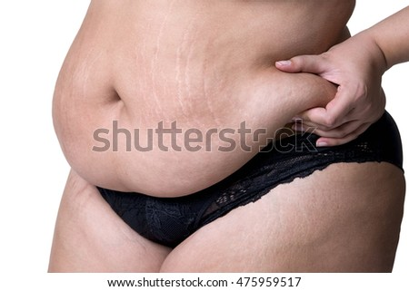 Fat female belly after pregnancy, stretch marks closeup, isolated on white background