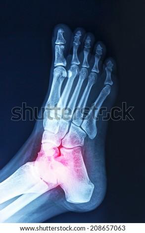 Color photos of arthritis