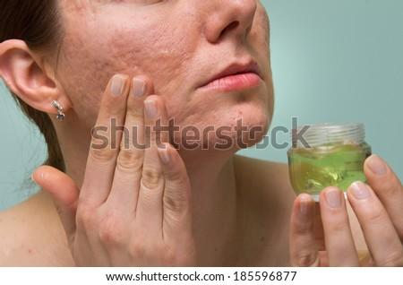 Sobre la persona la piel se descama los granos secos