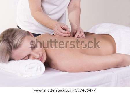 Girl gets acupuncture