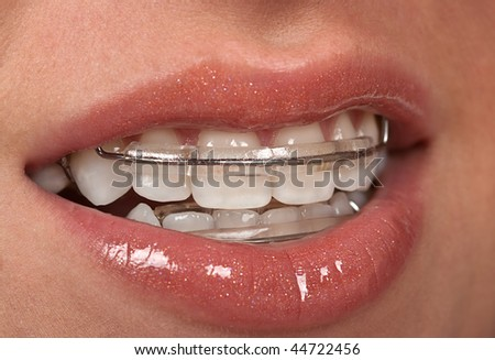 Girl with dental braces ( retainer)