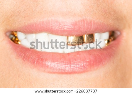 gold teeth girl
