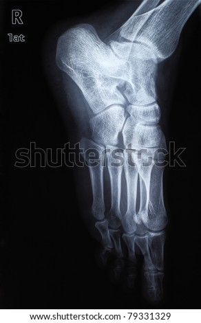 human foot ankle and leg xray picture