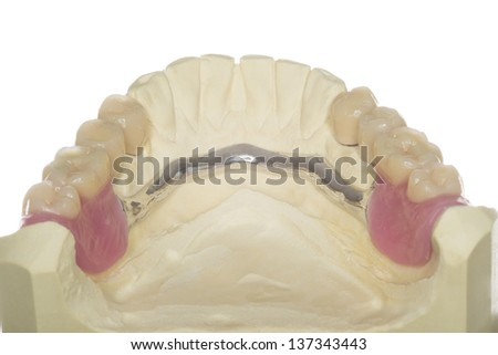 isolated denture from an dental laboratory