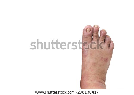 male foot with eczema isolated on white background