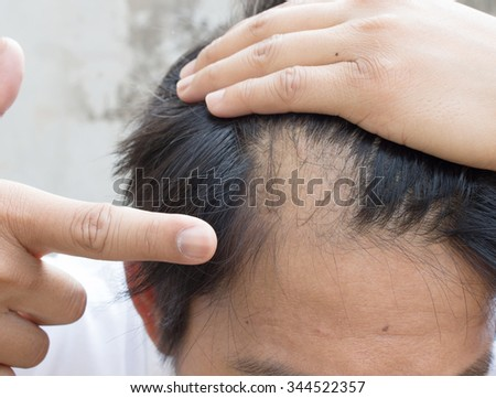man is hair loss