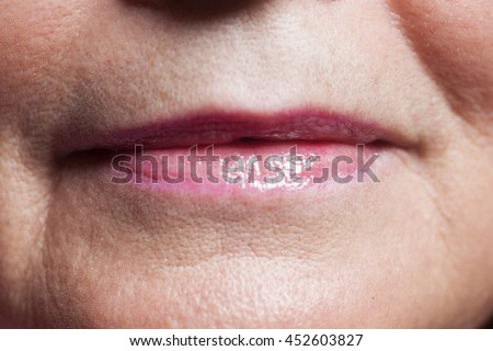 Herpes On Lips Young Woman Stock Photo 279248978 ...