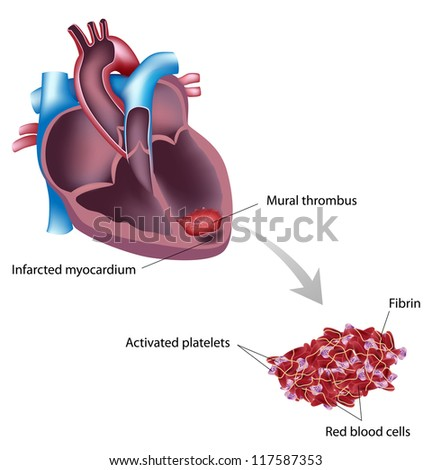 Mural thrombus after heart attack stock vector 117587800 for Mural thrombosis