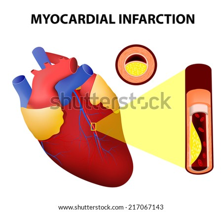 Myocardial infarction heart attack stock illustration 217067143 myocardial infarction or heart attack ccuart Images