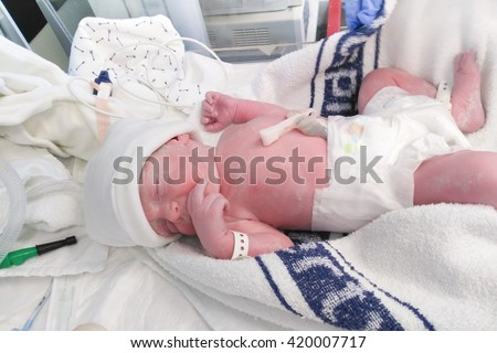 New born boy baby in diaper immediately after the caesarean section or C-section