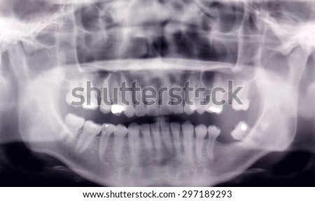 Panoramic Dental X-Ray Of Human Teeth, selective focus.
