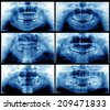 Panoramic dental X-Rays - stock photo