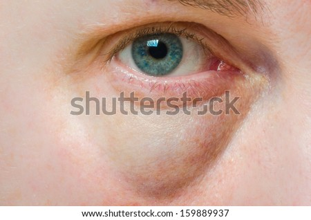 Puffy swollen eye on a Caucasian person