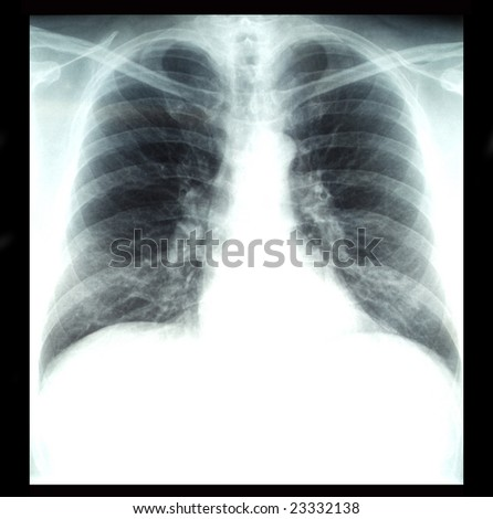 radiography of lungs