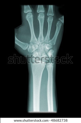 radiography of wrist isolated on black background