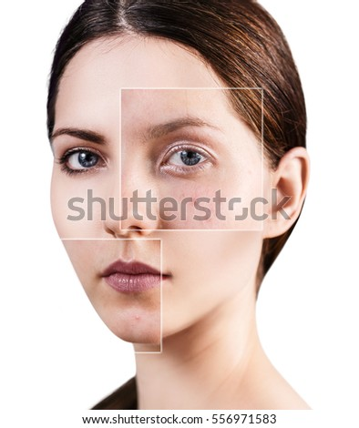 Teen issues skin