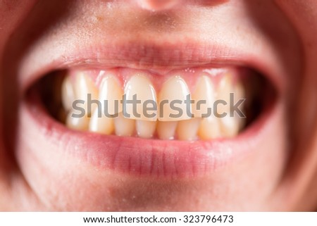 The dental bite. Jaw. Women smile