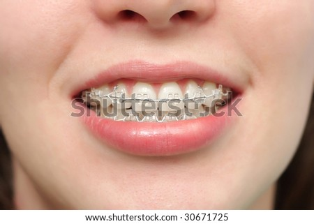 The girl smiles with braces system.