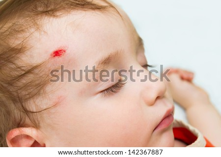 The little baby is sleeping with a wound on his forehead