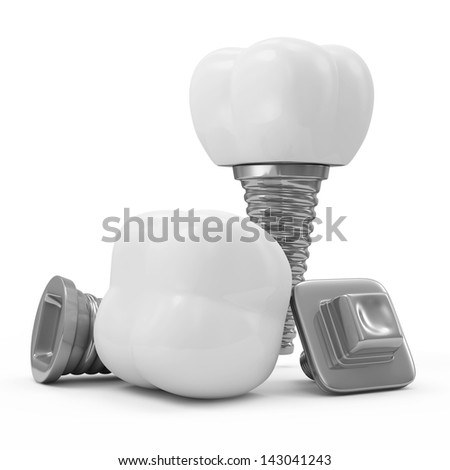 Tooth Implants isolated on white background