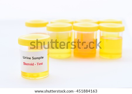Urine sample for steroid test