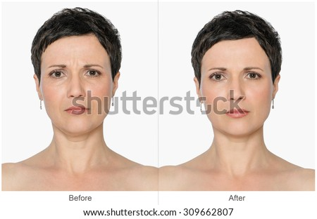 Woman with and without aging singes, double chin, worry wrinkles, nasolabial folds. Before and after cosmetic or plastic procedure, anti-age therapy, lifting, botox