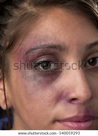 Woman with body facial injuries which can represent wife physical abuse, victim of crime and assault, or accident.  The injuries in the image are real from a biking accident.