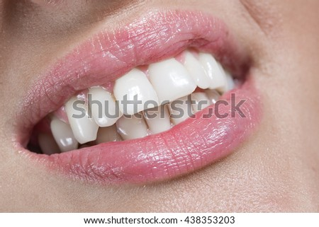 Woman with white teeth smiling, closeup of lips and teeth