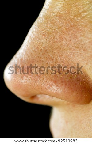 Women's Fatty Nose Pores