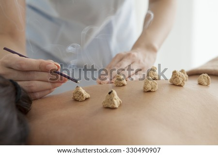 Patients Receiving Moxibustion Treatment Stock Photo