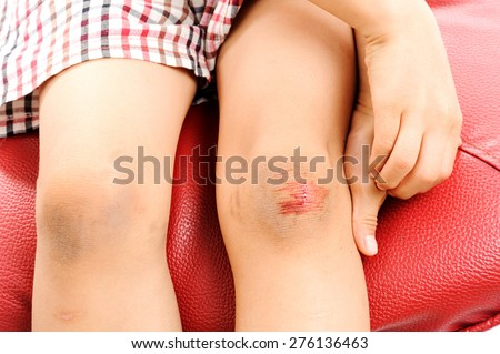 Wound on boy knee after got slip accident