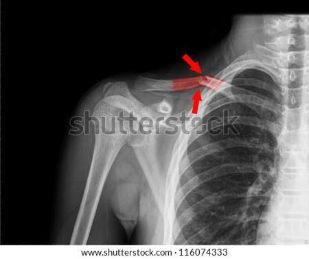 Broken Collar Bone X Ray X ray of collarboneX Ray Broken Collar Bone