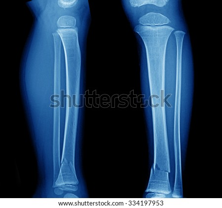 X Ray Film Tibia Leg Fracture Stock Photo 93276913 ...