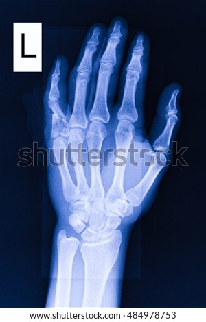 Xray Left Hand Xray Image Hip Joint A...