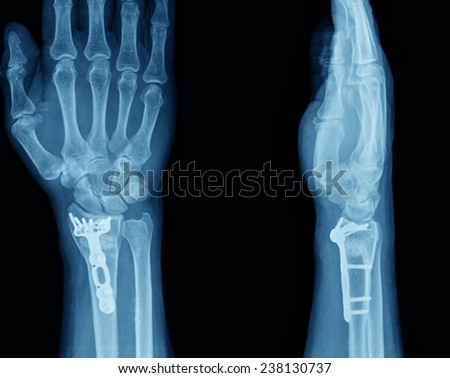 xray of human hand with screw