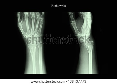 Xray Image Show Right Right Wrist Stock Photo 598674494 ...