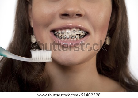 young girl with toothbrush and wearing bracket system keeps her teeth clean and white standing isolated over white background