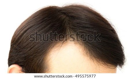 Young Man Serious Hair Loss Problem Stock Photo 500418739
