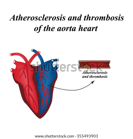 Atherosclerosis and thrombosis of arteries of the heart. Infographics. Vector illustration.