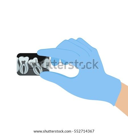 Black and white x-ray of the tooth in the hands of the doctor. Blue medical gloves. Vector illustration of flat design.