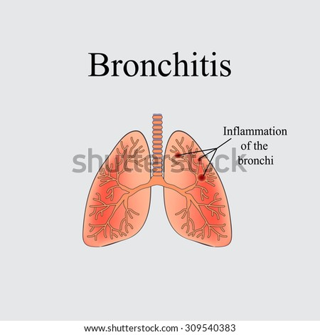 Human lung anatomy diagram illness respiratory stock vector the anatomical structure of the human lung vector illustration on a gray background ccuart Gallery