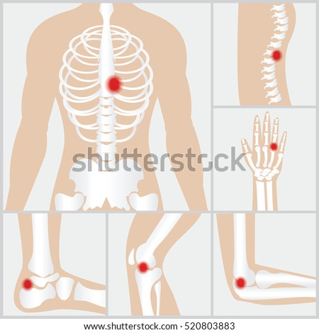 set human joints knee joint elbow stock vector 437149702, Skeleton