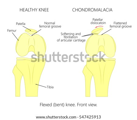 prosthetic knee diagram vector illustration healthy knee joint anatomy stock ...