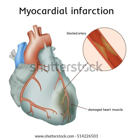 Illustration Circulatory System Capilary Blood Flow Stock ...